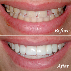 Dental Bridge Before/After