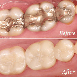 Dental Crowns before/after